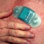 Zio Patch monitorizează fibrilatia atrială silentioasă